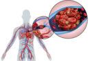 10 modi per identificare un coagulo di sangue (trombo) prima che sia troppo tardi