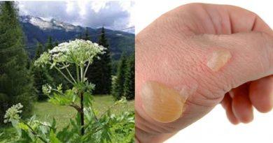 """Allerta dei medici: """"Non toccate questa pianta, provoca ustioni, cicatrici che guariscono anche dopo 7 anni e cecità"""""""