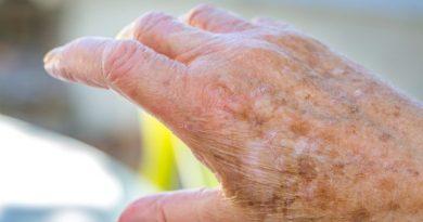 Macchie scure della pelle: ecco il modo per eliminarle in modo naturale e a costo zero ma i dermatologi non lo dicono