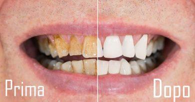 Otterrai denti più bianchi e lucenti con questo rimedio casalingo: basta dentista!